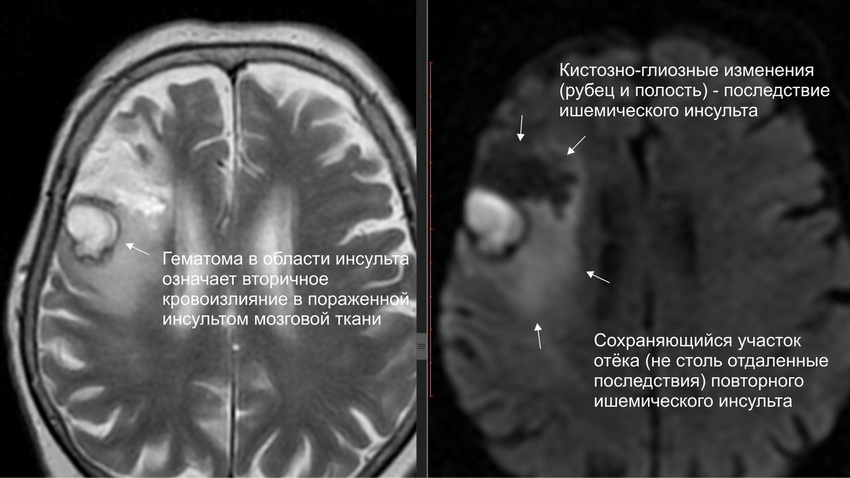 Кистозно глиозные изменения височной доли головного мозга